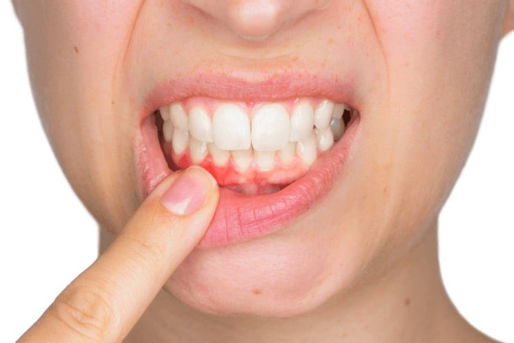 What Does Bleeding Around Your Dental Implant Mean? | PCE