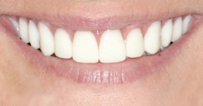After Teeth - Dental Implants in Conroe