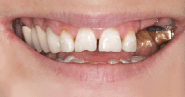 Before Teeth - Tooth Implant in the Woodlands