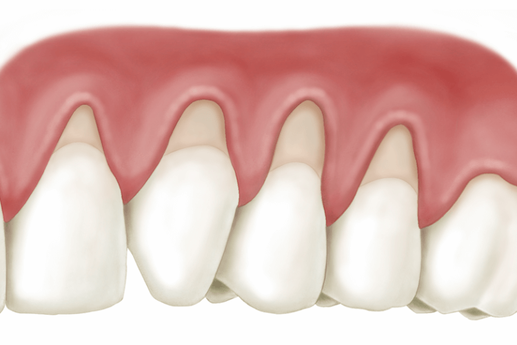 Dental Implants Laser Gum Therapy Periodontist Houston