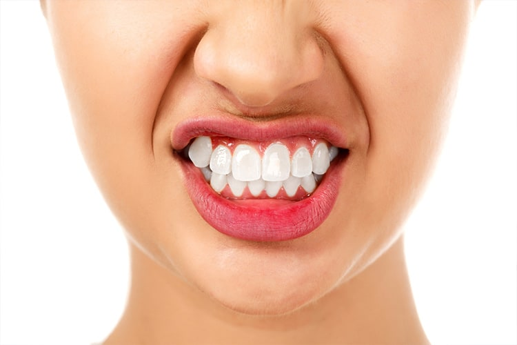 Three Things You Didn't Know About Teeth Grinding