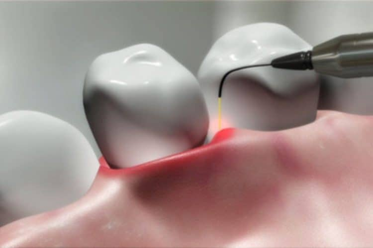 Four-Reasons-to-Consider-Laser-Gum-Treatment