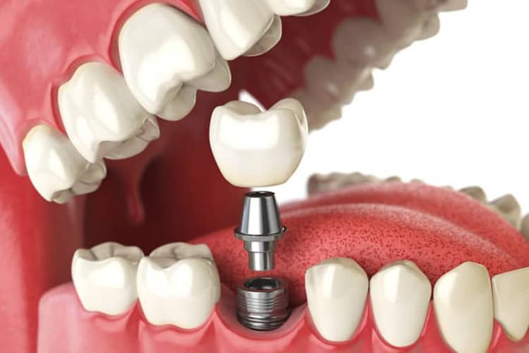 Four Benefits of Dental Implants