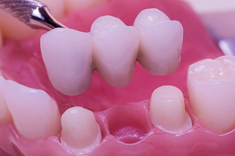 Then vs. Now: Replacing Missing Teeth